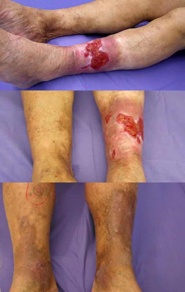 Klinische Stadien des Ulcus cruris